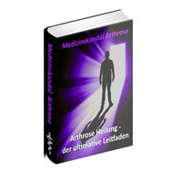 Medizinskandal Arthrose - eBook